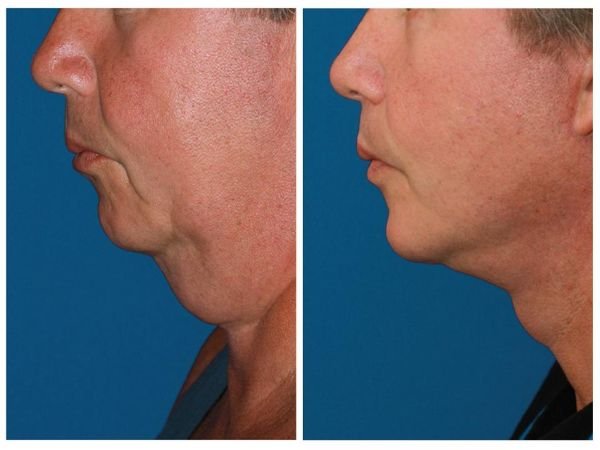 Male Before & After Face and Neck lift