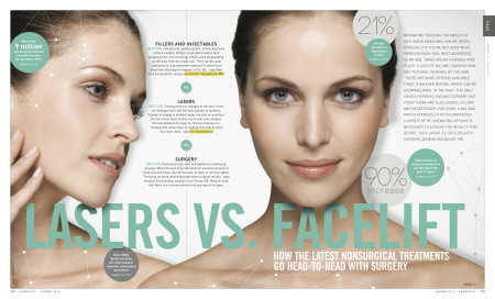 media-lasers-vs-facelift