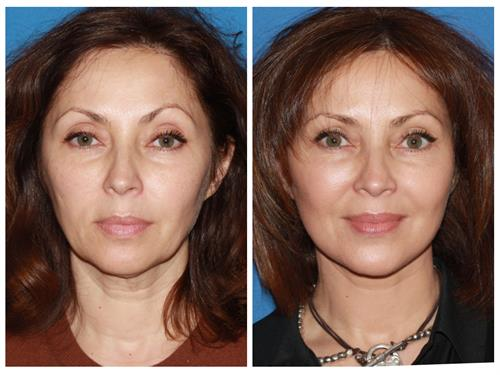 Advanced Facelift case #11 before & after photo