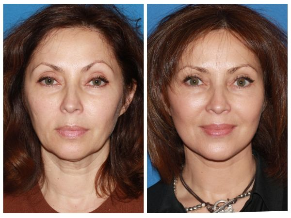 Before and after Advanced Facelift Case #11 in New York