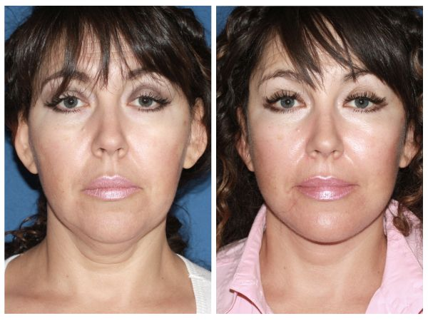 Advanced Facelift case #12 before photo