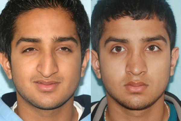Cosmetic Rhinoplasty case #14 before photo