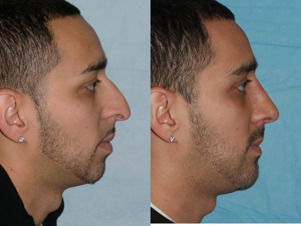 Cosmetic Rhinoplasty case #17 before photo