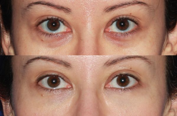 Fillers & Fat Grafting case #33 before photo