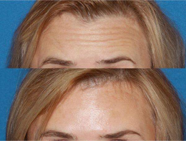 BOTOX, Dysport & Xeomin case #37 before photo