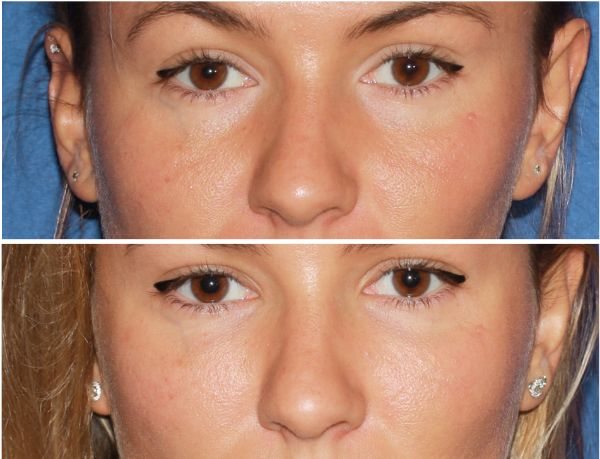 Fillers & Fat Grafting case #39 before photo