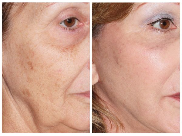 Skin Resurfacing case #43 before photo