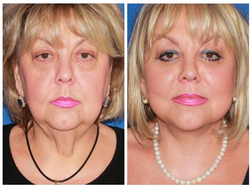 Advanced Facelift case #46 before & after photo
