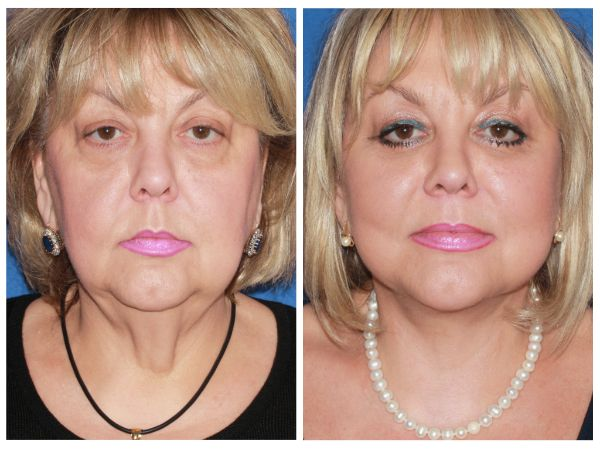 Advanced Facelift case #46 before photo