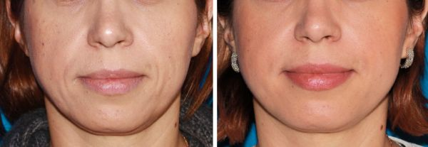 Fillers & Fat Grafting case #55 before photo