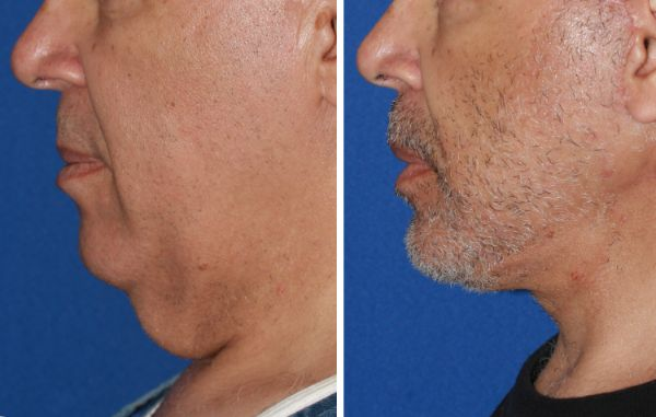 Male Face & Neck Lift case #59 before photo
