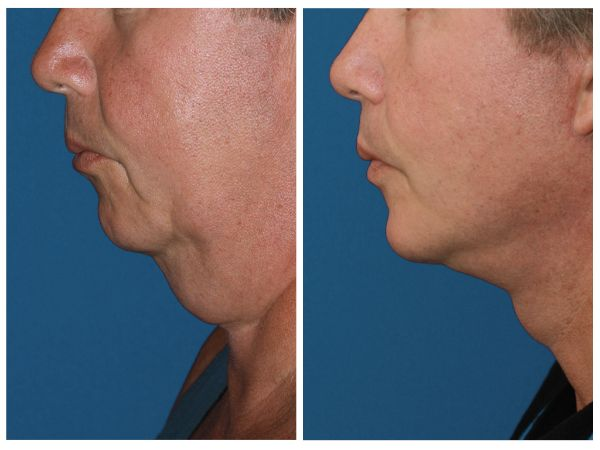 Male Face & Neck Lift case #61 before photo