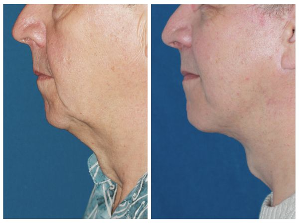 Male Face & Neck Lift case #62 before photo