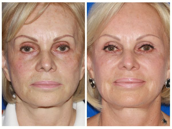 Fillers & Fat Grafting case #63 before photo