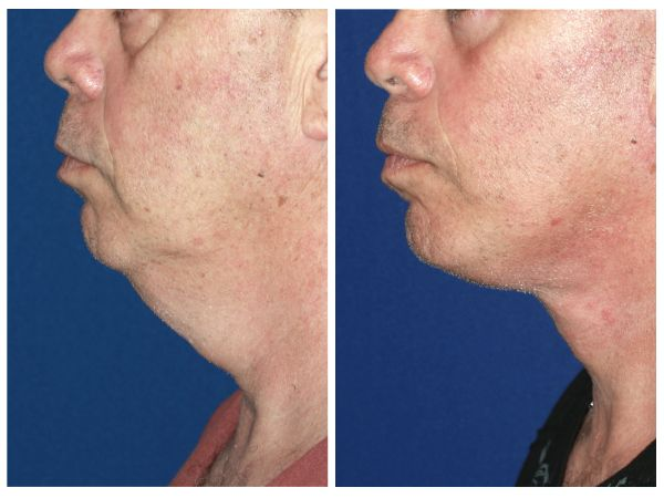 Male Face & Neck Lift case #67 before photo