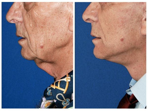 Male Face & Neck Lift case #69 before photo