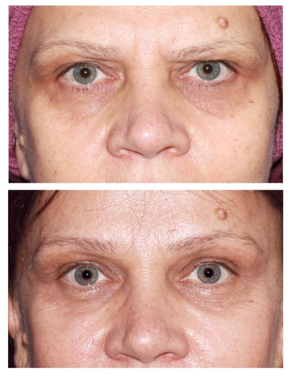 Before and after Browlift Case #71 in New York