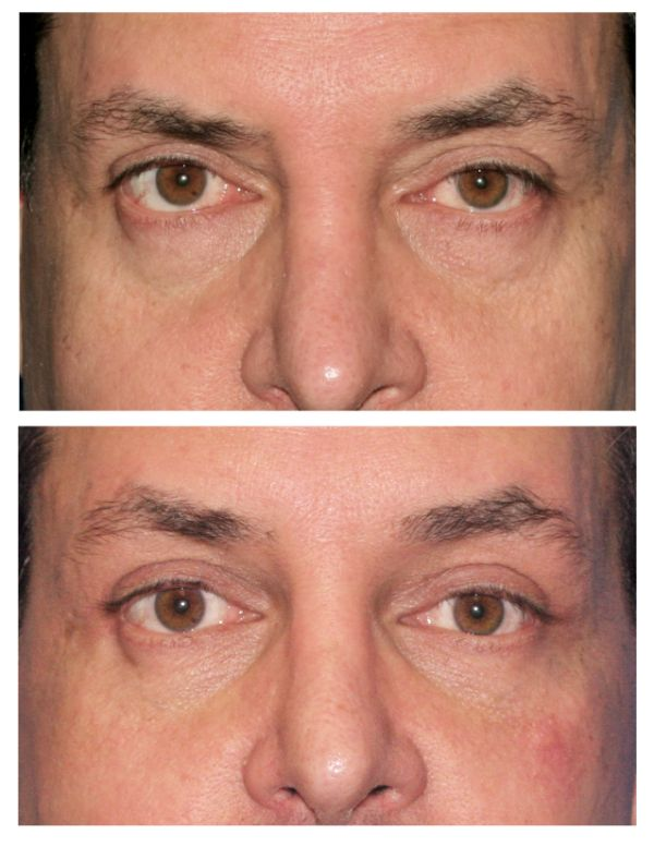 Before and after Browlift Case #72 in New York