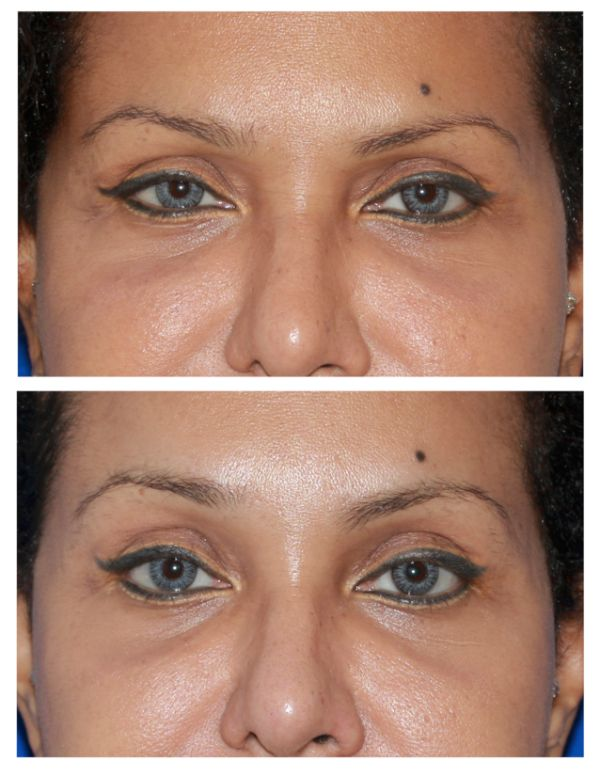 Before and after Browlift Case #73 in New York