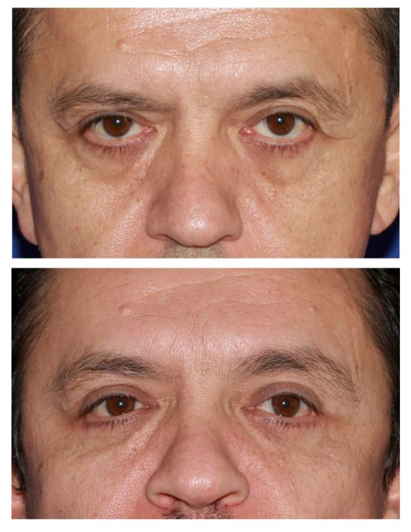 Before and after Browlift Case #75 in New York
