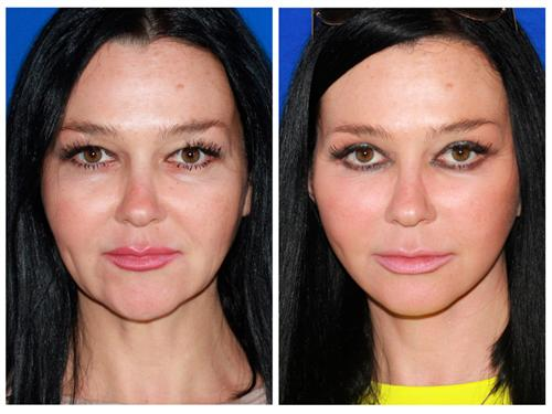 Advanced Facelift case #78 before & after photo