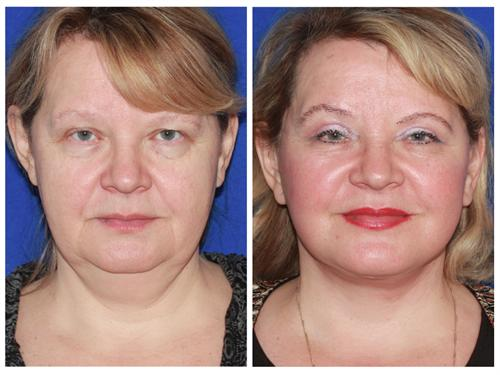 Advanced Facelift case #79 before & after photo