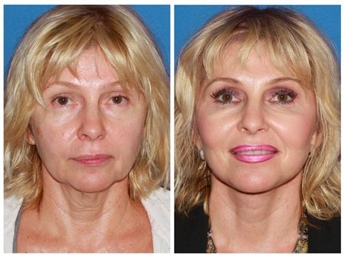 Advanced Facelift case #9 before & after photo