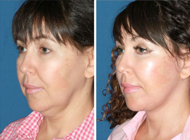 Deep-plane facelift before & after