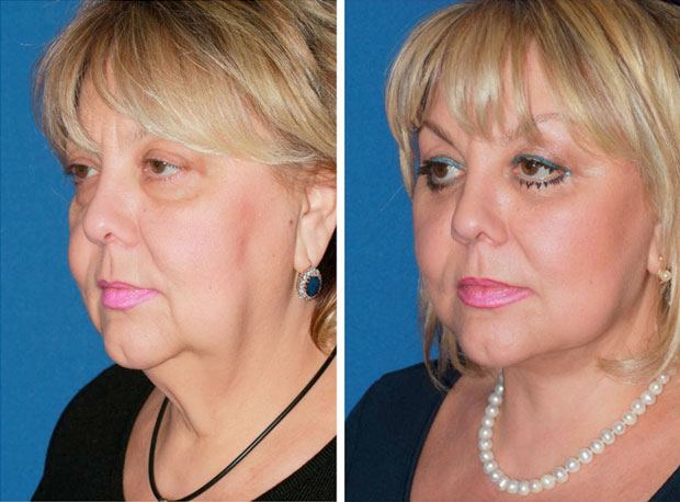 Full facelift before & after