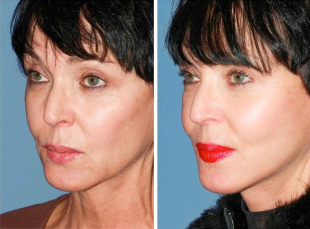 Mini facelift before & after
