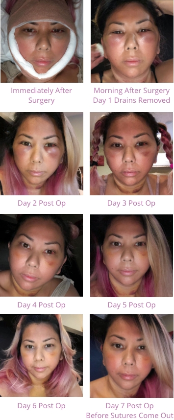 A series of photos of facelift recovery progress